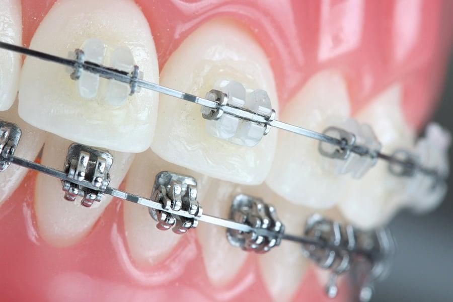 dental claim for orthodontic treatment